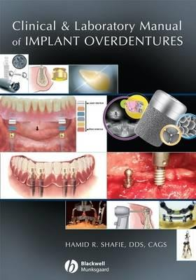 Clinical and Laboratory Manual of Implant Overdentures - Click Image to Close