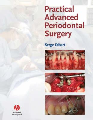 Practical Advanced Periodontal Surgery - Click Image to Close