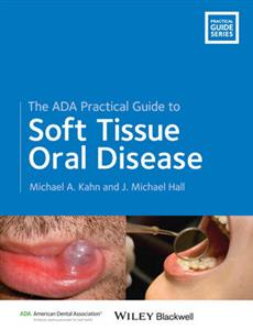 ADA Practical Guide to Soft Tissue Oral Disease, The