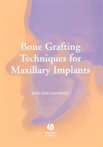 Bone Grafting Techniques for Maxillary Implants