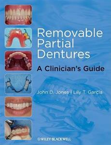 Removable Partial Dentures: A Clinician's Guide