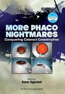 More Phaco Nightmares: Conquering Cataract Catastrophes